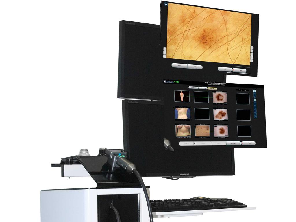 Specijalna bolnica IOANNA MediGroup nabavila uređaj za pregled svih promena na koži