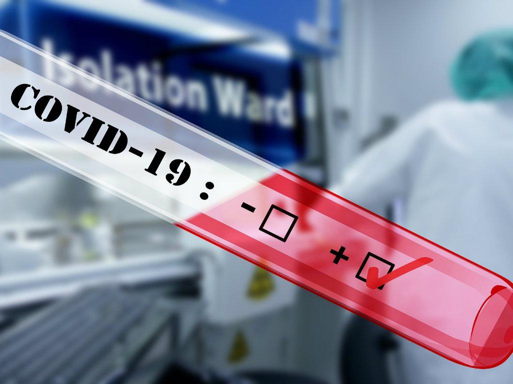 Fond podržao 12 inovativnih rešenja za suzbijanje efekata pandemije Covid-19