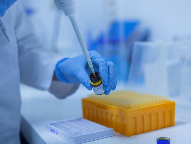 Pivara Trebjesa donirala laboratorijsku opremu bolnici u Brezoviku