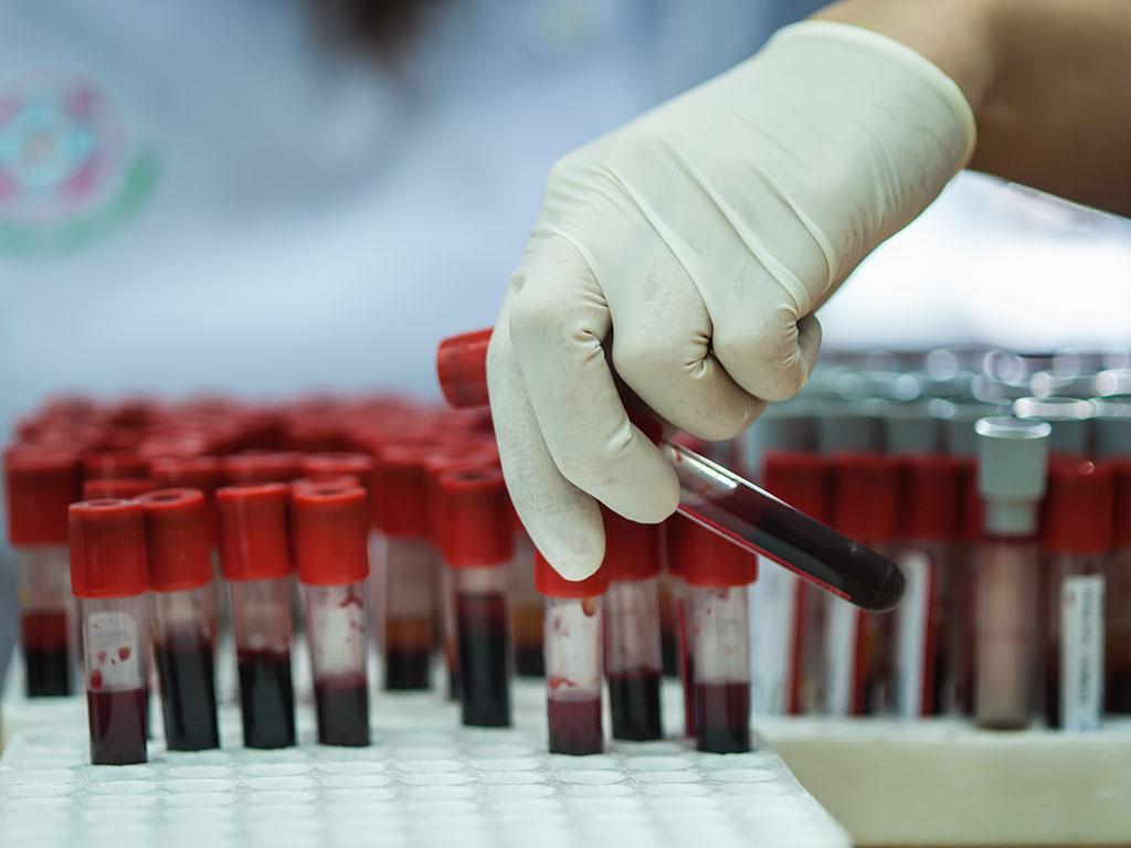 Konačni rezultati studija o kolektivnom imunitetu u RS krajem januara