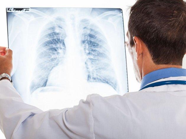 Banjsko liječenje za osiguranike iz RS koji su preležali virus korona