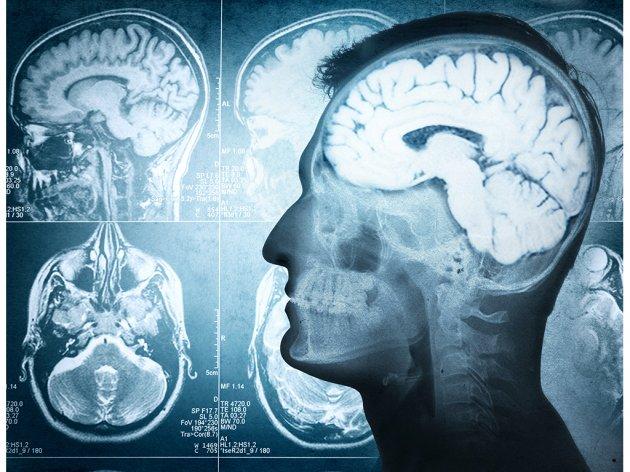 Novi vještački mozak razvija se poput ljudskog