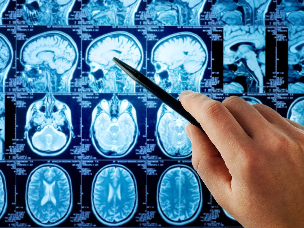 Mozak dnevno obradi 100.000 reči