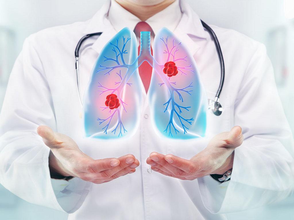 Malo je novih lekova za rak pluća - Dobre rezultate ostvaruje primena biološke imunoterapije