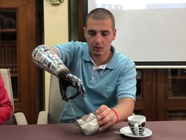 Na KCUS prvi put u regionu ugrađena vještačka proteza ruke (VIDEO)